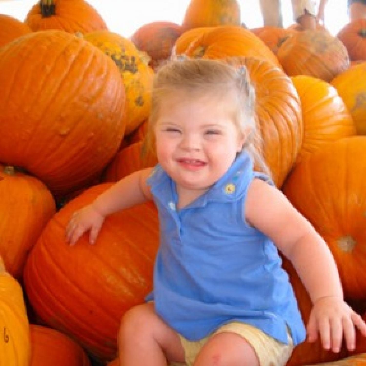 A Special Joy Babies With Down Syndrome Galleries