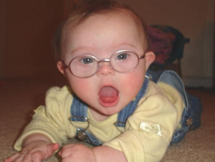 Black down syndrome baby