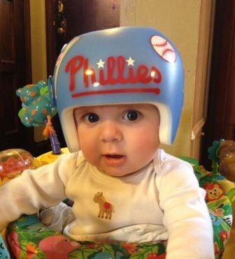 How I Handled The News Your Baby Needs A Helmet Parenting