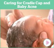Caring for Cradle Cap and Baby Acne
