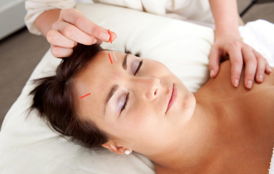 Acupuncture Can Help Alleviate Pregnancy Aches and Pains ...