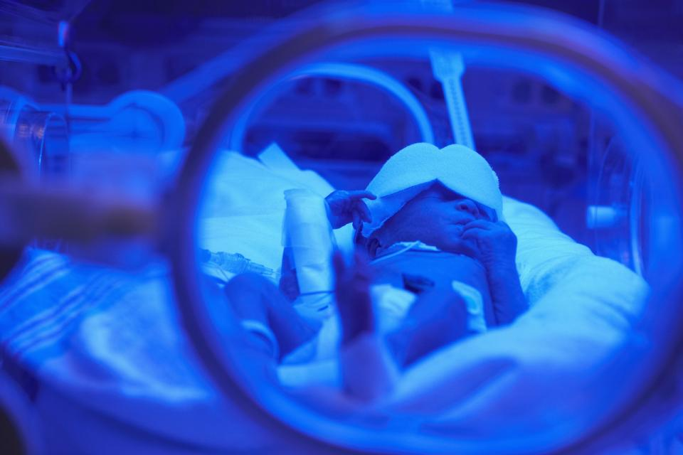 What Parents Should Know About NICU Care