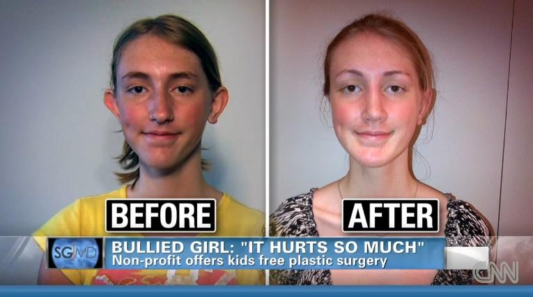 Non Profit Organization Helps Bullied Girl Afford Plastic Surgery