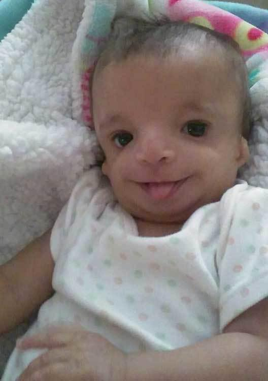 mom keeps baby born with birth defects after adoptive parents back